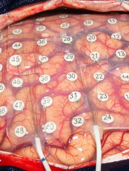 cerveau electrodes paroles