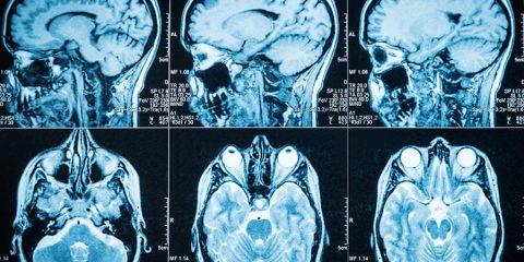 cerveau scanner matiere grise