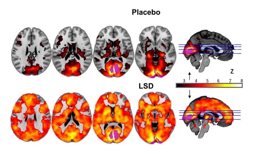 lsd cerveau placebo
