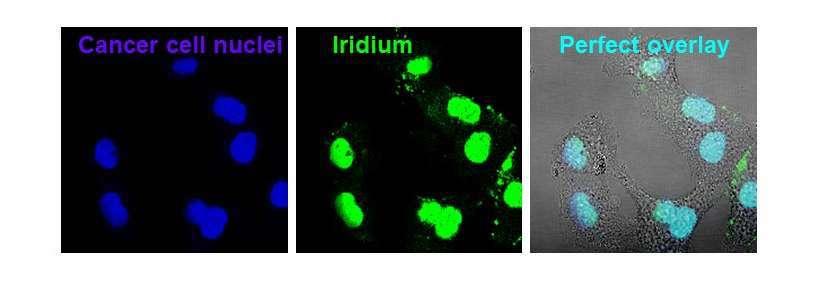 cellules cancereuses iridium