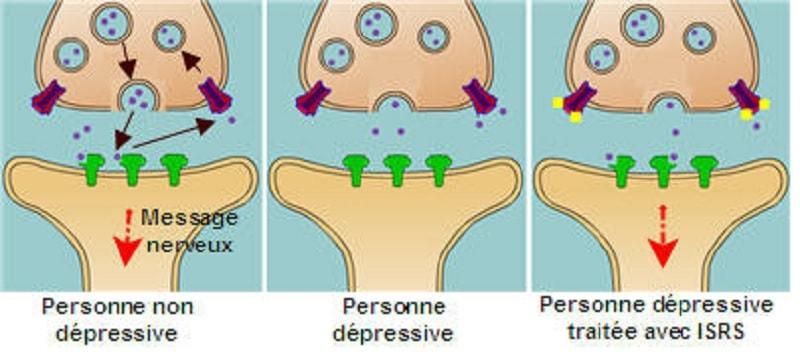 isrs depression serotonine