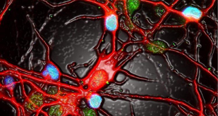 neurones activite depression