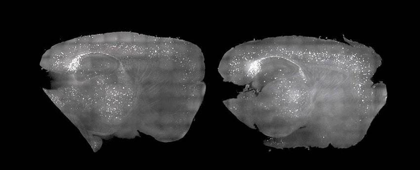 cerveaux souris alzheimer