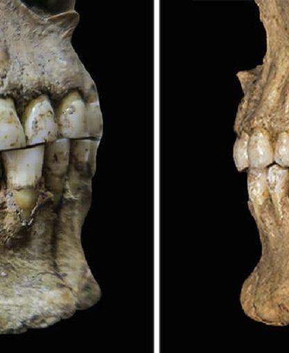 dents machoire labiodentales