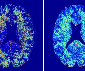 irm cerveau myeline