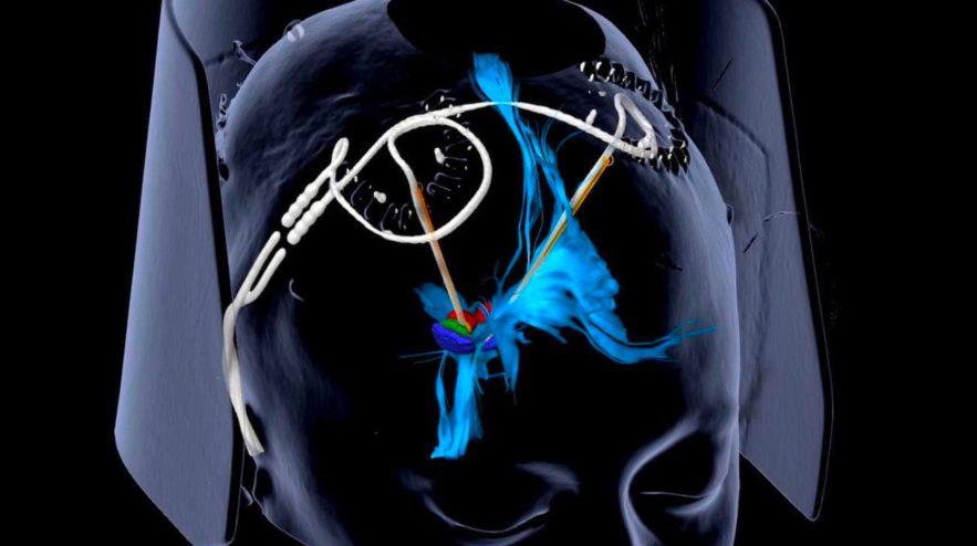 stimulation cerebrale profonde depression