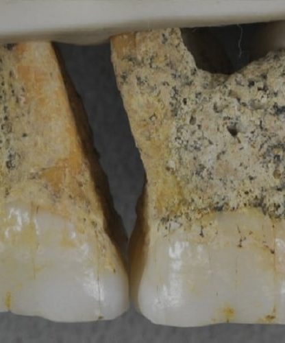 dents homo luzonensis