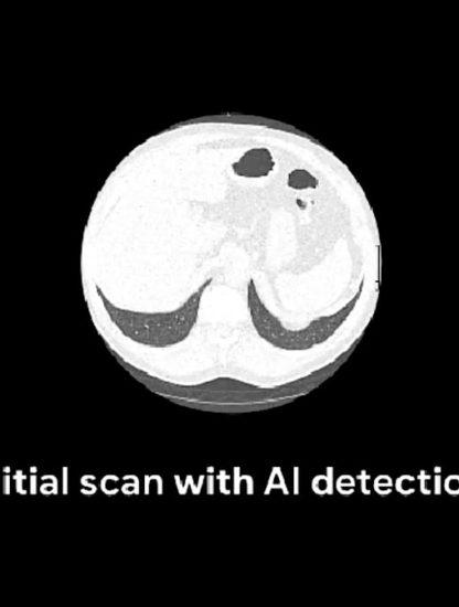 google ia irm diagnostic cancer poumon
