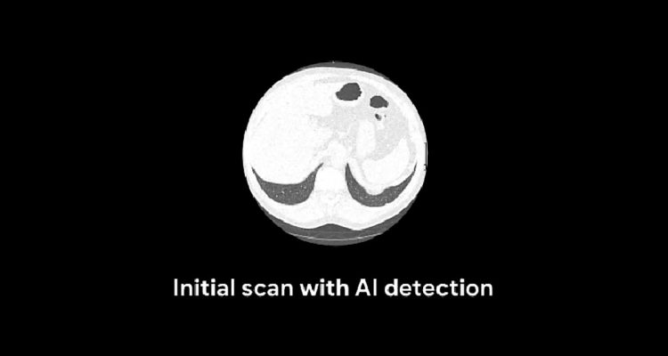 google ia irm diagnostic cancer poumon