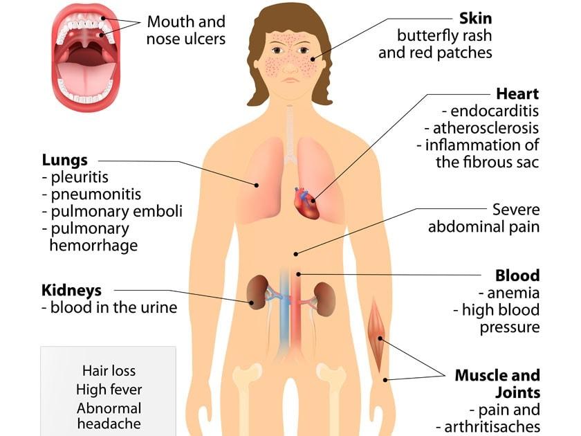 symptomes lupus