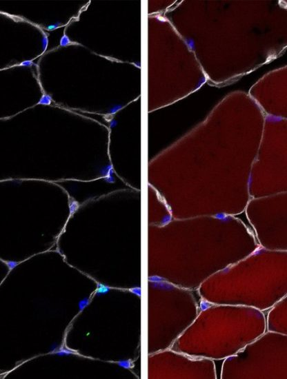 cellules souches modifies genetiquement