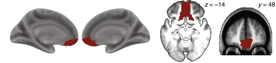 irmf cortax prefrontal