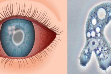 lentilles contact cecite