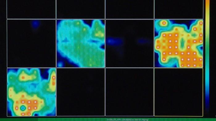 organoide cerebral cellule souche