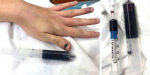 gel anesthesique rend sang femme bleu