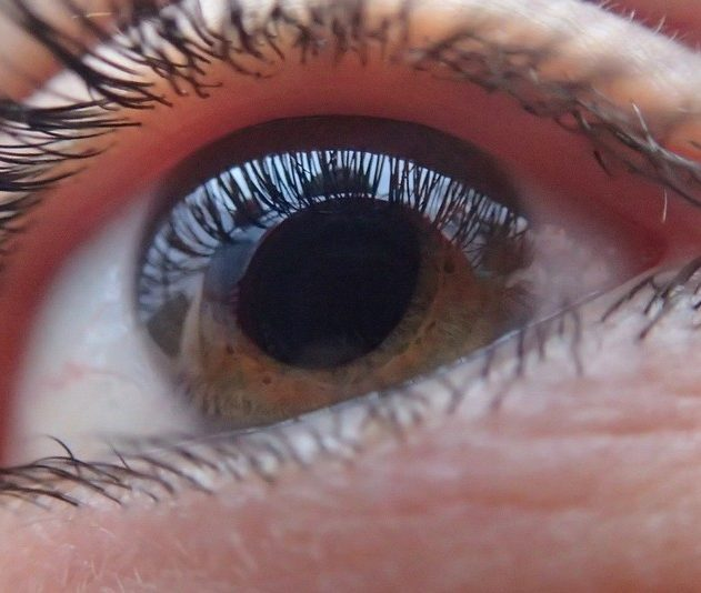 cornee oeil yeux maladie cellule souche pluripotente induite