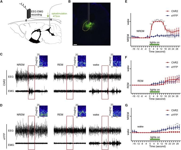 stimulation neurone sommeil