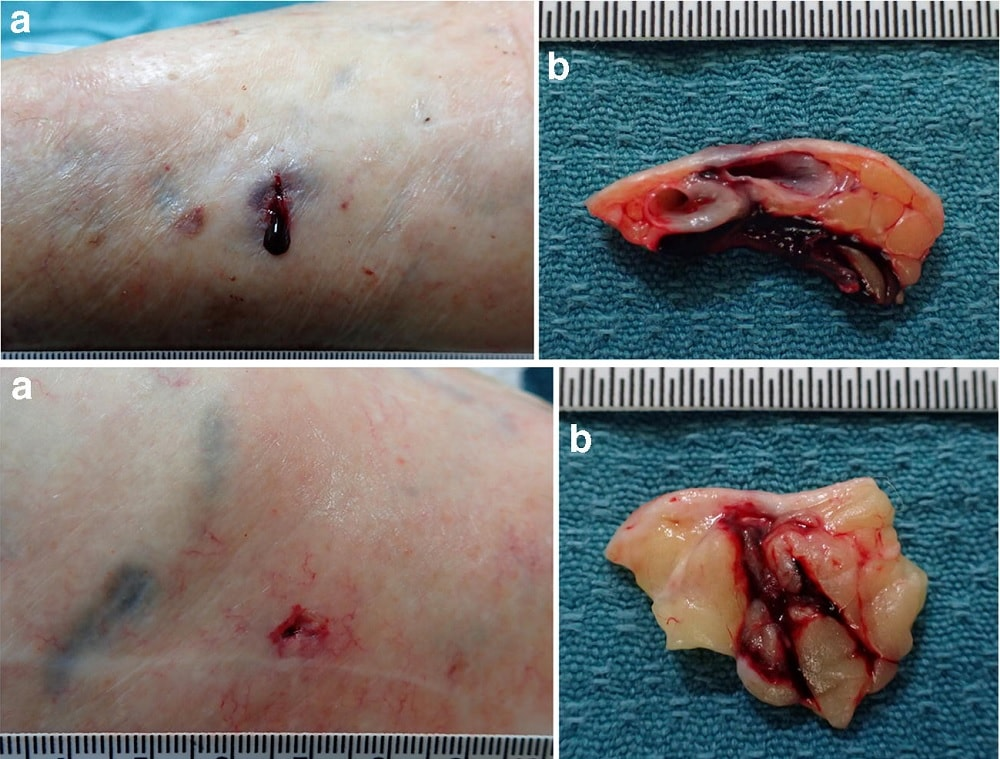 veines blessures