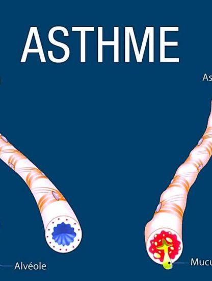 identification facteurs provoquant asthme