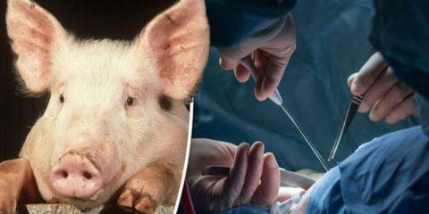 peau porc genetiquement modifiee utilisee pour greffe