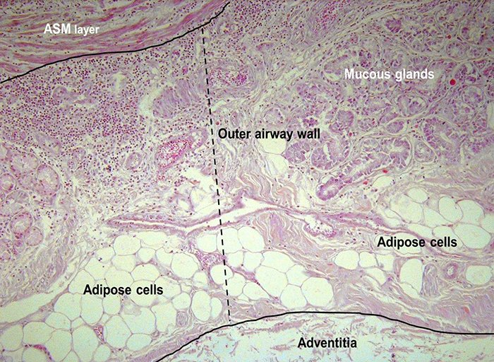 tissu adipeux voies respiratoires asthme
