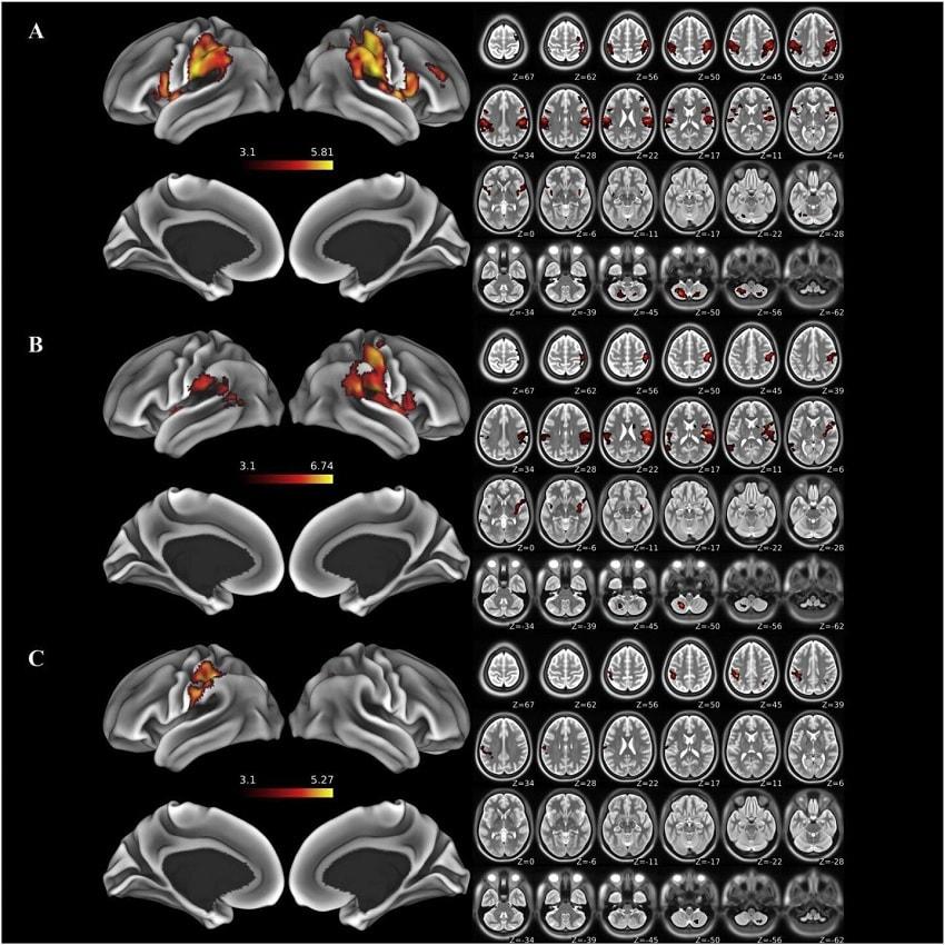 irmf cerveau amputation