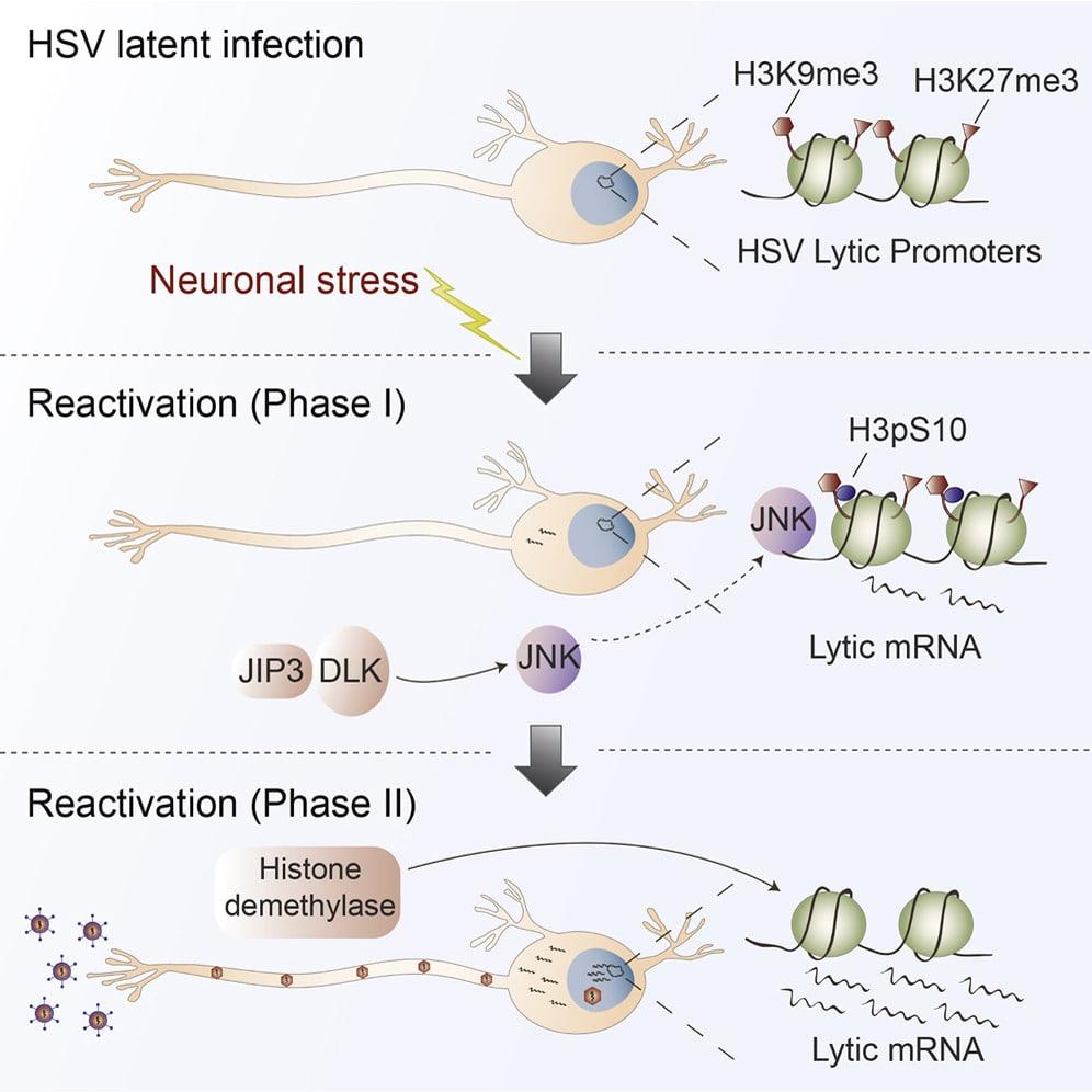 stress nerveux activation herpes