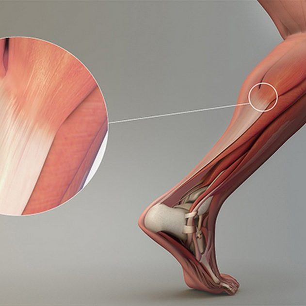 tendons muscles