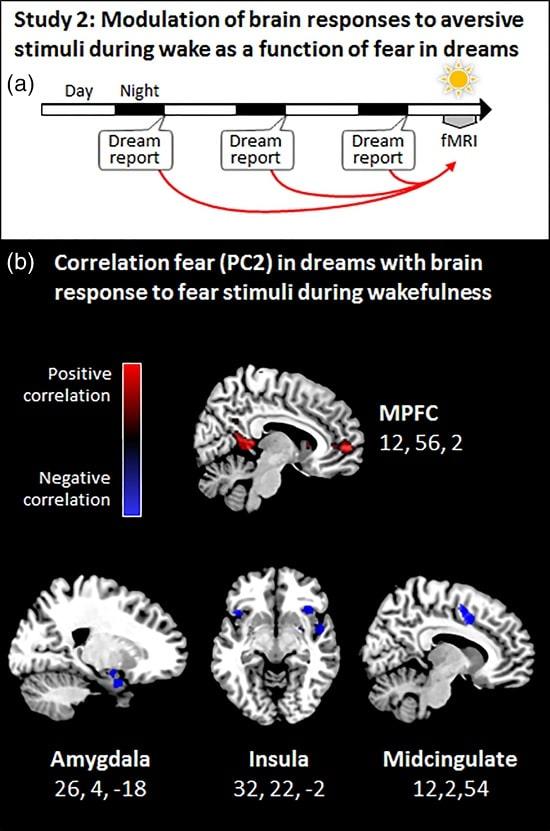 zones cerveau reves