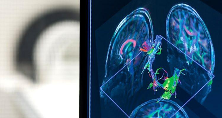 IRM 7 Tesla nouvelles perspectives sclérose en plaques