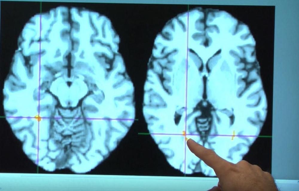 cerveau pilule contraceptive orale changement structure cerveau hypothalamus