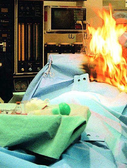 femme roumaine brulee vive operation bistouri electrique