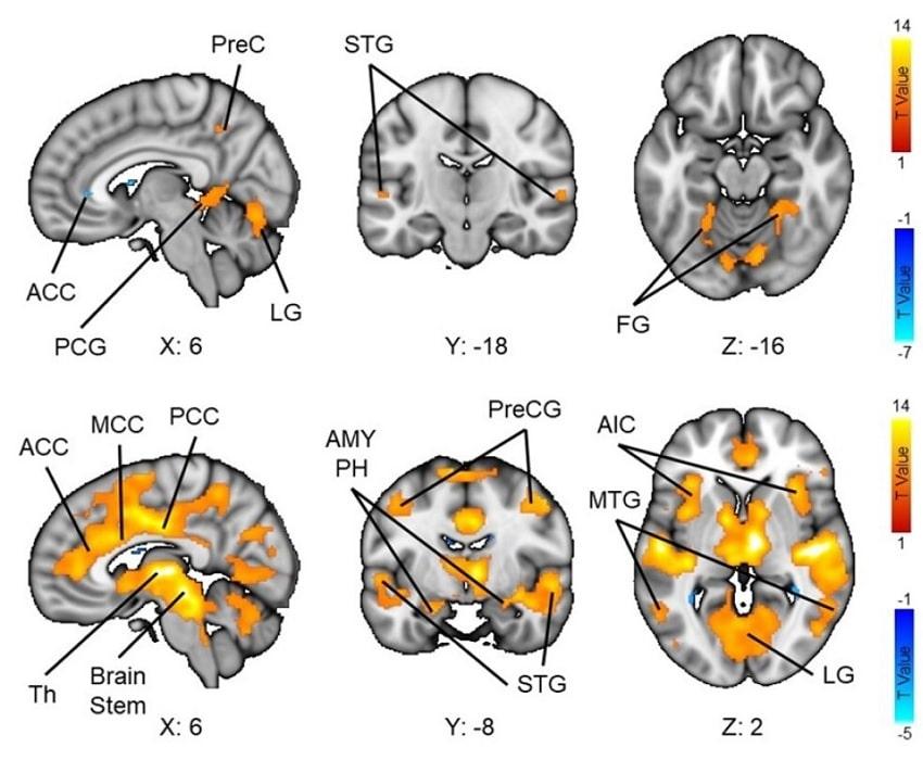 activite cerebrale films