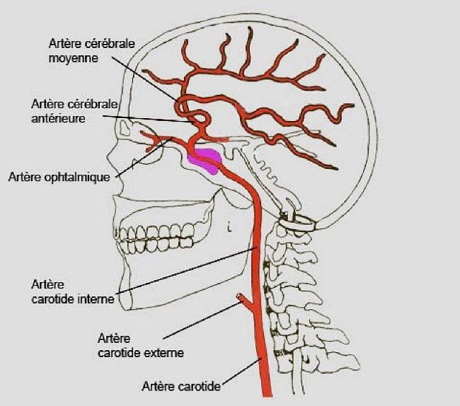 artere cerebrale