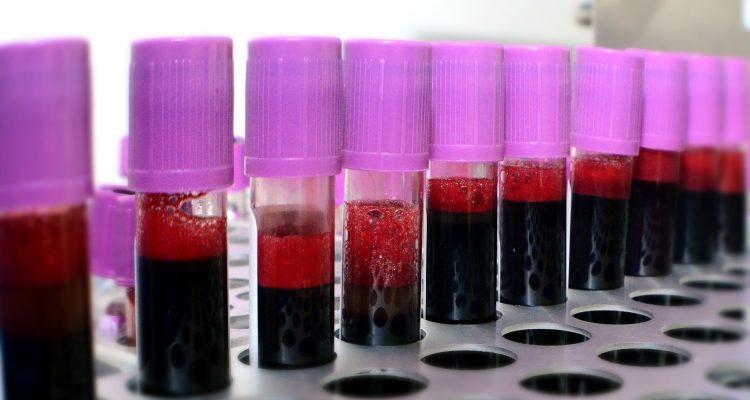 therapie par serum de convalescence