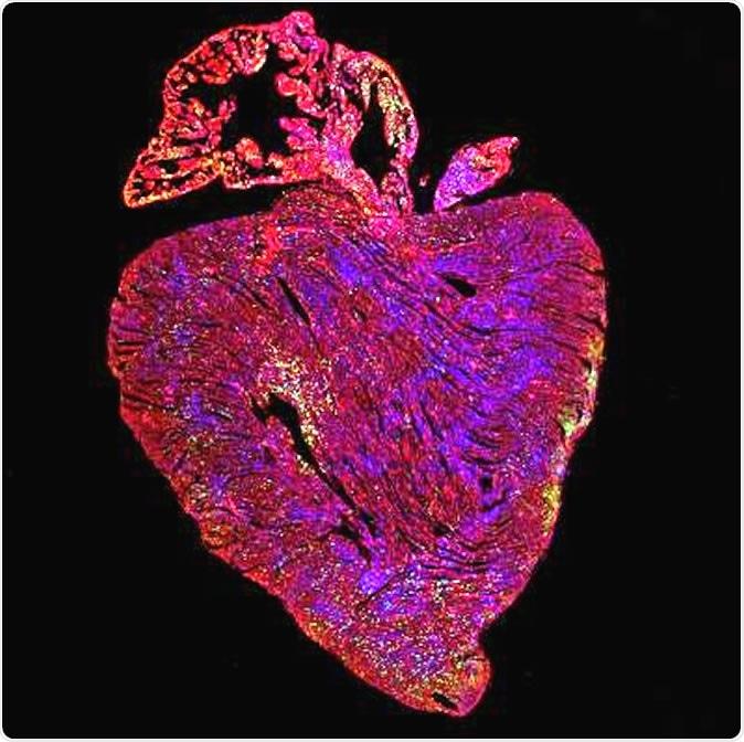 réplication cellules cœur gène cancer