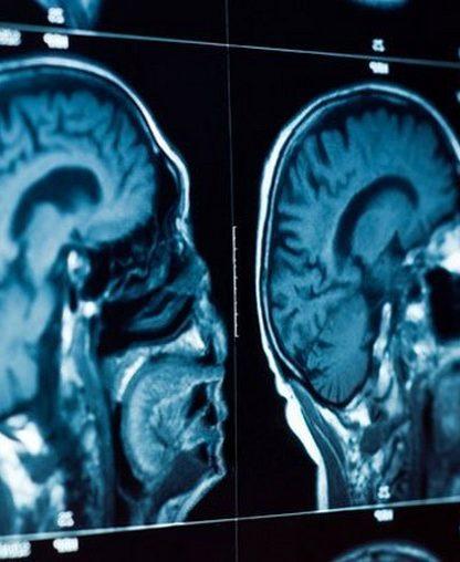 depression cerveau