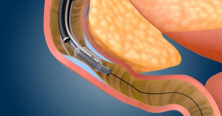 diabete fractyl