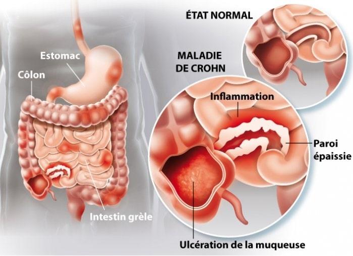 inflammation mc