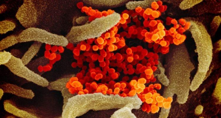 sars cov 2 coronavirus covid-19