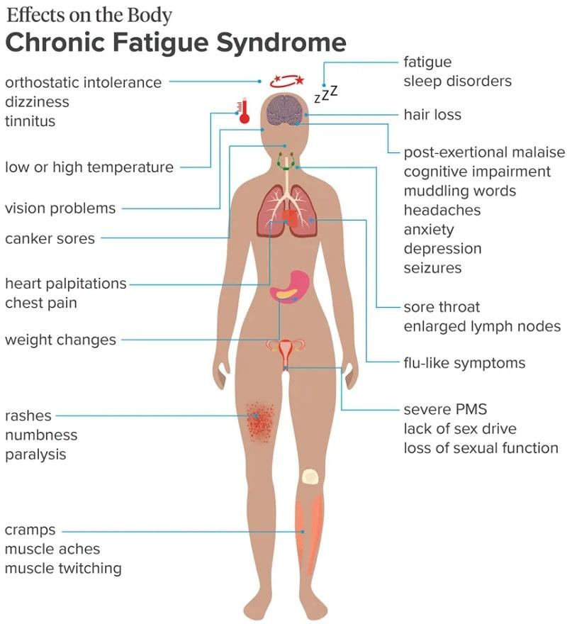 symptomes sfc