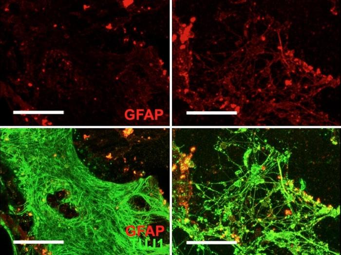 cellule herpès alzheimer
