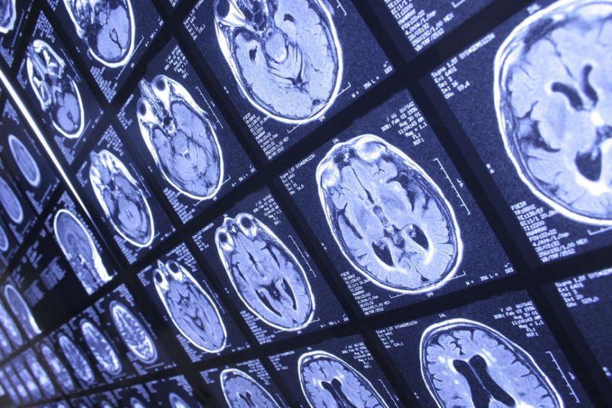 coronavirus cerveau covid19 neurologie
