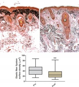 effets thérapie cellules souches derme profond