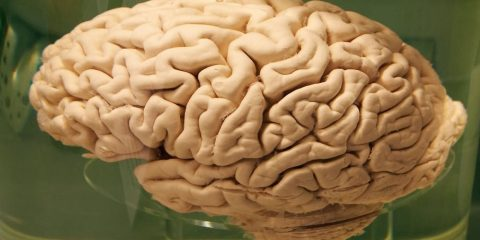 replis cerveau