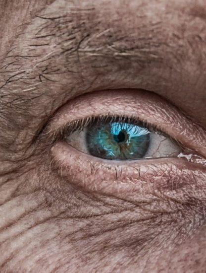 thérapie cellules souches régénération peau