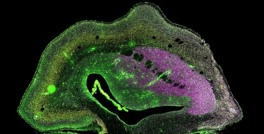 cerveau ouistiti transgénique gène humain