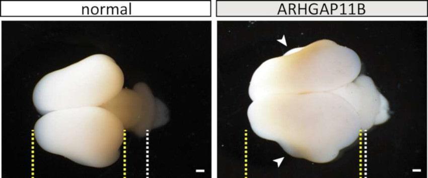 augmentation taille cerveau primate gène humain