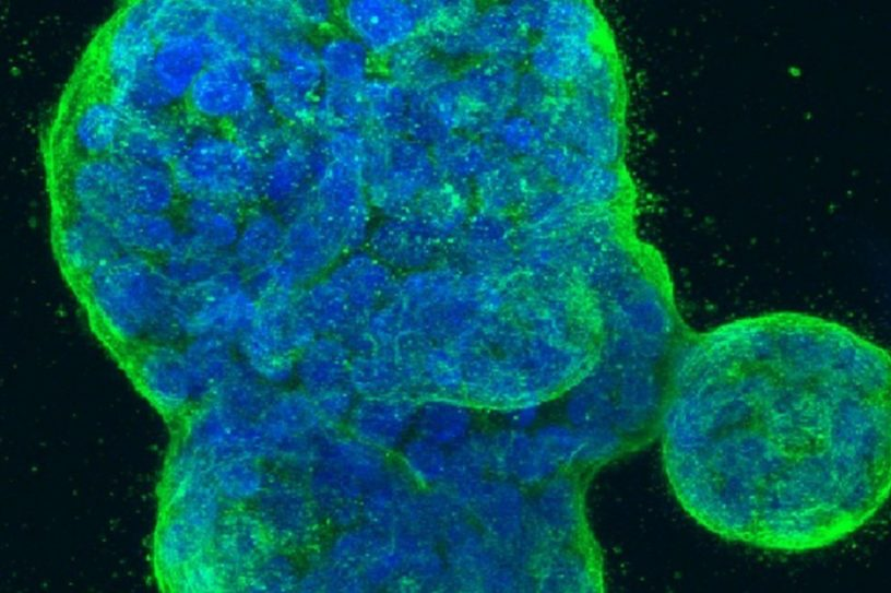 cancer sein modele murin culture cellules humaines