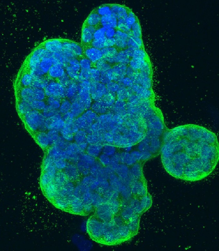 culture cellules humaines cancer sein modele murin